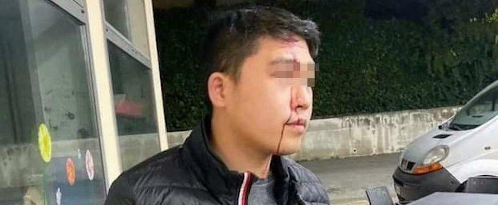 """""""Hai il coronavirus, non puoi entrare!"""": gli spaccano una bottiglia in testa perché cinese"""